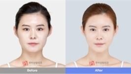 面部轮廓整形如妃医院怎么样,术后真人案例效果如何?