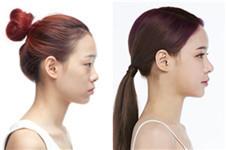秀美颜自体耳软骨+硅胶鼻综合手术案例效果好吗?