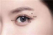 去韩国修复全切双眼皮哪家医院技术更好