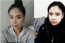 在韩国现代美学脂肪填充+鼻综合整形后年轻十岁
