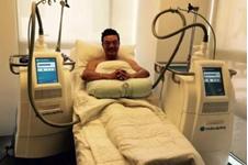 韩国在敦医院冷冻溶脂安全吗?术后效果好不好?