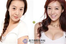 我在韩国高兰得花11万做四方脸下颌角整形+隆胸的经历