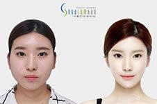 韩国原辰面部轮廓VS佳轮韩轮廓三件套哪个效果好?