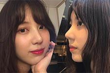 韩国秀美颜整形外科隆鼻修复+脂肪填充照片案例分享