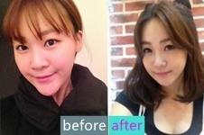 韩国原辰整形医院下巴整形改变人生
