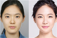 NJH卢钟勋医院下颌角VS德莱茵3D下颌角哪家瘦脸效果更好?