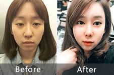 韩国加美做眼鼻整形+面部脂肪填充效果怎么样?