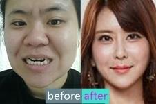 韩国JAYJUN整形医院金起完双鄂手术,V脸重塑,浑然天成