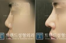 韩国trend医院鼻子整形怎么样?术后效果自然吗?