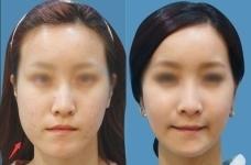 韩国江南三星医院双鄂手术好不好,术后效果怎么样?