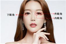 韩国那木开眼角整形前后对比图效果明显吗?
