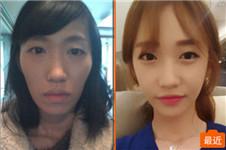 韩国巴诺巴奇双鄂+颧骨缩小手术三个月后变童颜美少女