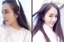 韩国清潭优切开双眼皮+鼻综合整形,手术过程大揭秘!