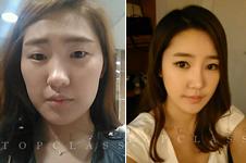 韩国TOPCLASS医院眼鼻+轮廓整形真人案例解析!