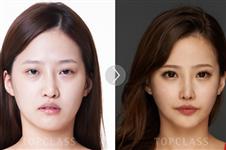 韩国原辰与topclass整形外科医院假体隆鼻特色对比