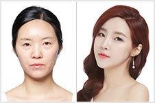 韩国秀美颜面部整形真实案例,从大妈变成女神