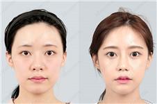 韩国哪家医院颧骨内推术后无下垂、恢复时间短?