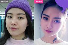 韩国A特整形医院下颌角手术效果好不好,有没有案例对比?