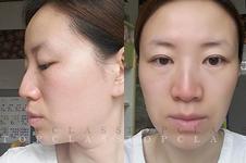 韩国TOPCLASS医院立体轮廓隆鼻手术案例揭秘!