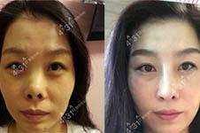 nano和4月31谁是韩国出名的隆鼻医院?