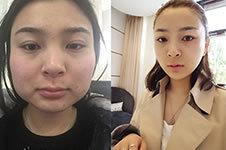 韩国GNG济颜吉做面部轮廓,开启人生新篇章