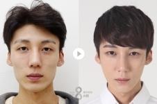 韩国A特整形医院面部综合+眼鼻整形术后恢复日记