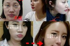 AHN整形外科隆鼻恢复P...