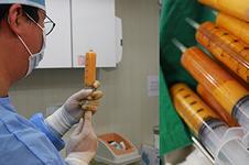 A特医院做面部脂肪填充手术优势有哪些?
