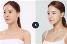 韩国女生在JAYJUN整形外科做下颌角整形后变V脸童颜美女