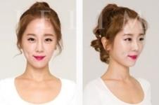 韩国植发医院哪家好,毛杰琳技术怎么样?