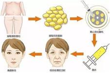 韩国脂肪填充选芙莱思还是维摩,哪家成活率高?