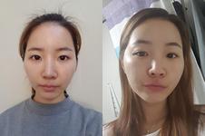 在玛博尔医院做了颧骨+假体隆鼻,术后变成这样!