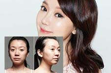 韩国做轮廓好医生:柳济圣和njh卢钟勋谁更强?