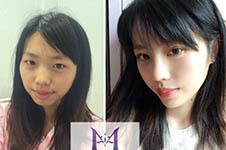 美自人整形在韩国口碑,全靠了这些明星案例!
