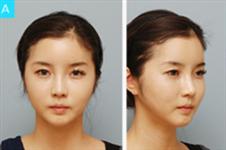 韩国布拉德整形外科石润院长颧骨缩小技术好吗