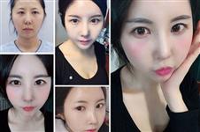 韩国本地哪家医院做自体脂肪面部填充有名气?