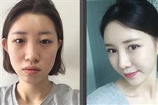 韩国omega医院眼鼻整形+脂肪填充+vline术后两个月记录