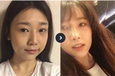 韩国JAYJUN整形外科面部提升效果怎么样,在本地受欢迎吗?