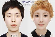 韩国faceline医院好还是原辰好,面部轮廓整形实力大比拼