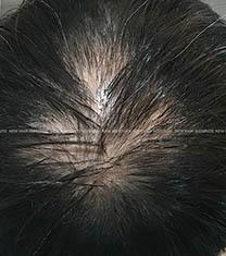 韩国江南nhi男士脱发种植对比图_术前