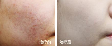 童颜中心皮肤科肤质改善案例