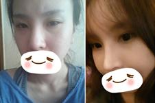韩国如愿整形医院做眼鼻整形有没有真人案例?