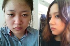 韩国AHN医院安晟凤院长做隆鼻手术特点有哪些?
