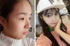 TOPclass整形医院,眼鼻综合术后日记曝光!
