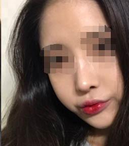 韩国丽丝塔整形金东奭做鼻子案例_术后