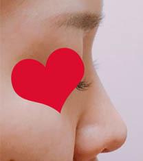 韩国丽丝塔整形金东奭鼻综合前后对比图_术前