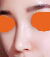 韩国丽丝塔金东奭隆鼻案例图_术后