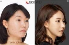 韩国TOPclass整形医院好不好,系列案例展示实力!