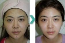 韩国史丹利皮肤外科术后效果,海量案例带你一次看个够!