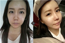 韩国A特整形外科深部脂肪去除+蓝玫瑰提升+脂肪移植经历